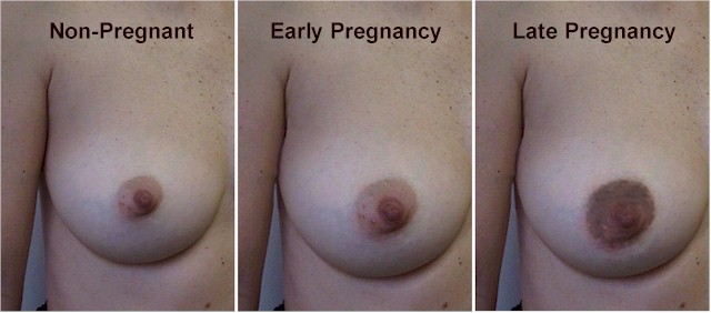 Breast pregnancy