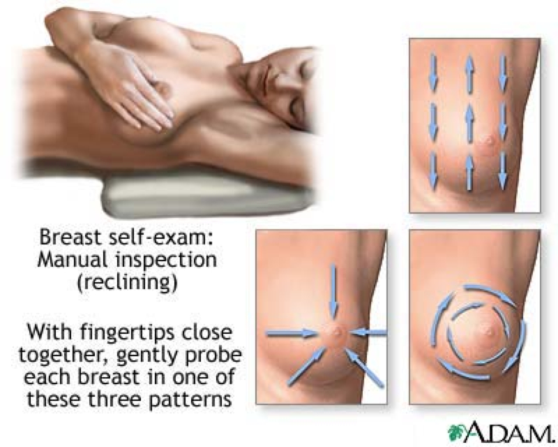 breast examination 2