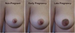 Μεταβολές του γεννητικού συστήματος της γυναικας
