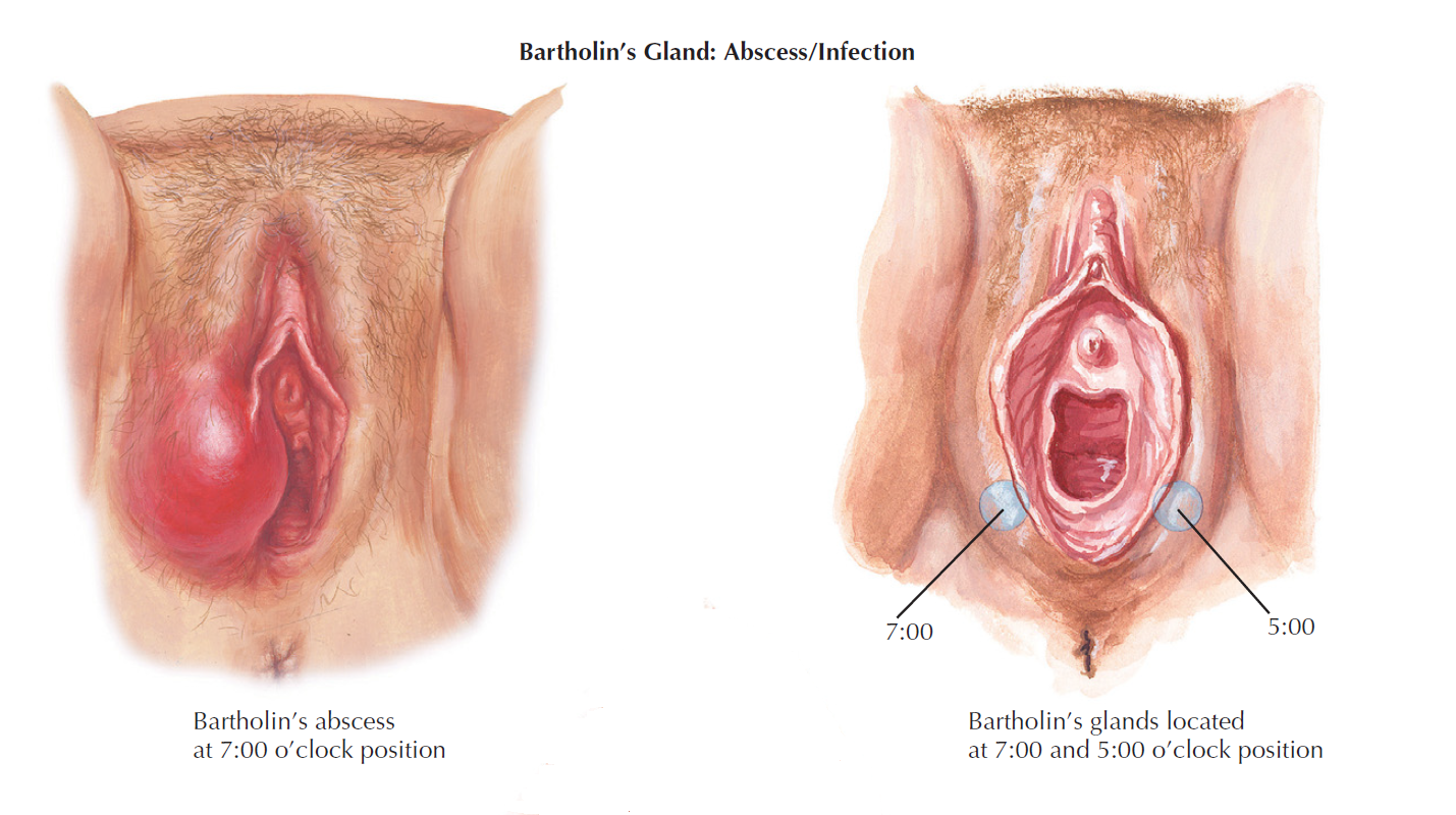 barthoyns gland and abscess