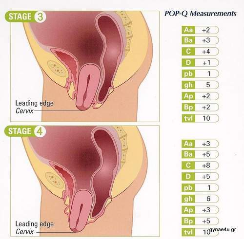 uterine_prolapse_stg3and4.jpg
